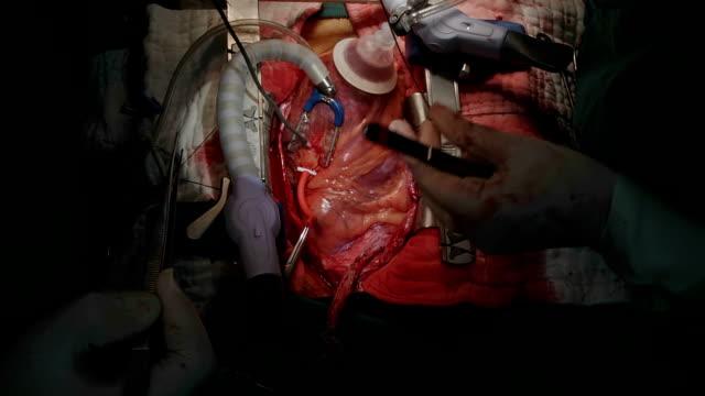 vidéos et rushes de chirurgien cardiologue utiliser sonde sizer mesure artère coronaire diamètre - veine humaine