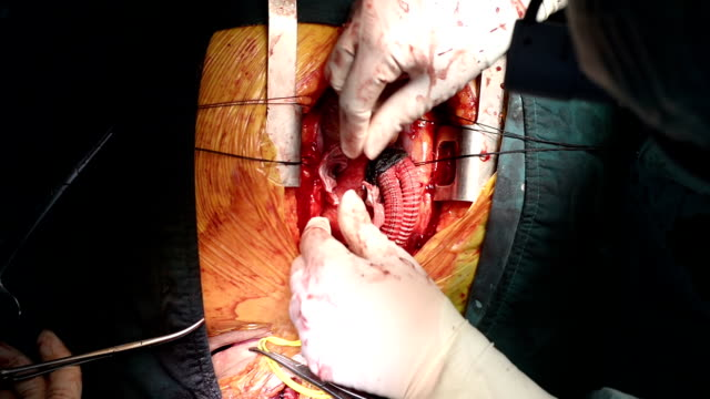 heart surgeon wrap ascending aorta - aorta stock videos & royalty-free footage