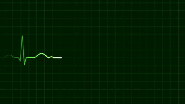 Heartbeat ECG (HD, 5s, loop