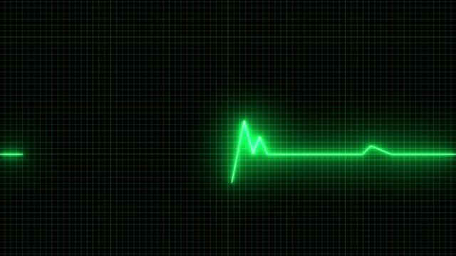 ハートビートラインとekg ecg 4kループ可能 - 心電図点の映像素材/bロール