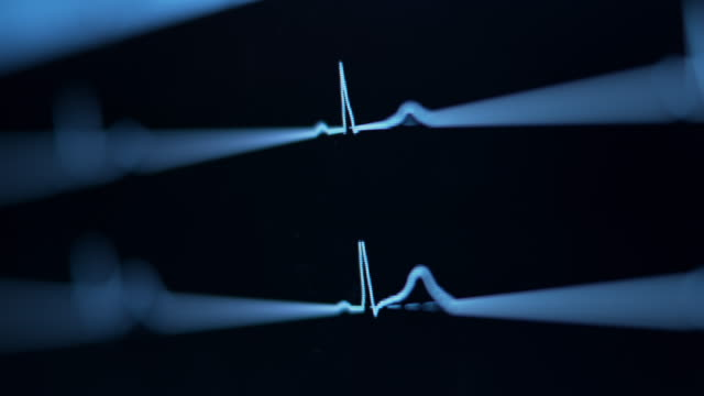 heartbeat line on the monitor - medical examination stock videos & royalty-free footage
