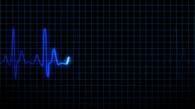 Heartbeat Endlos wiederholbar