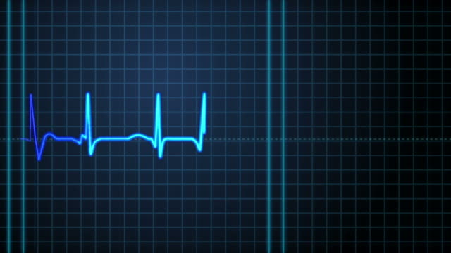 a heartbeat on an ekg machine. - machinery stock videos & royalty-free footage