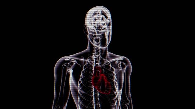 Haard | Röntgenfoto van menselijk lichaam - loopbare