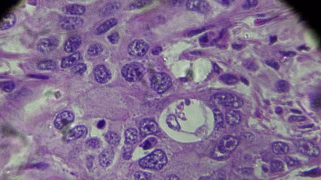 hepatocellular carcinoma, hcc under microscopy - stain test stock videos & royalty-free footage