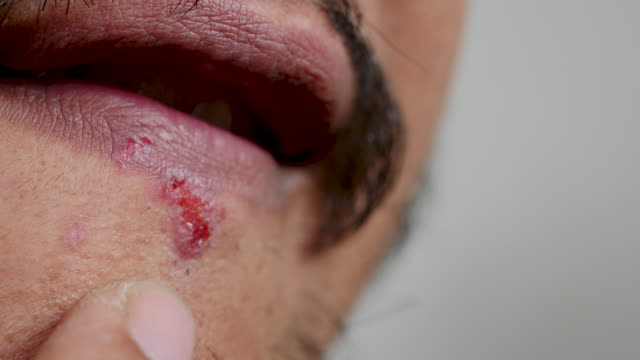 stockvideo's en b-roll-footage met herpes op de lippen van de man - cut video transition