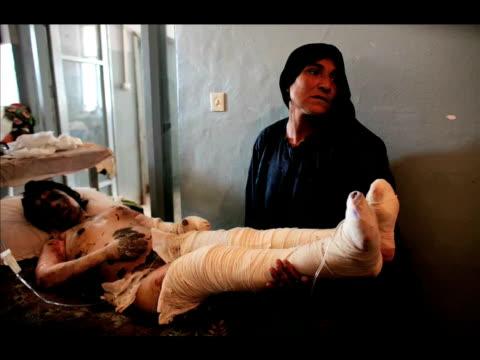 vídeos de stock, filmes e b-roll de hidden victims - afghan women turn to self immolation to escape violent marriages - autoimolação