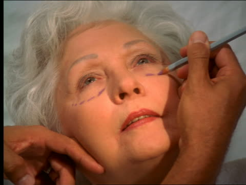 high angle zoom in senior woman being prepared for plastic surgery with markings on face + laser tracing - plastic surgery stock videos and b-roll footage