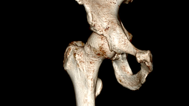 'Hip joint arthritis, 3D MRI scan'