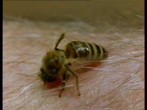 a honeybee stings a human arm, then pulls out the stinger. - stinging stock videos & royalty-free footage