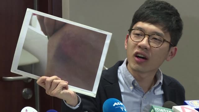 Hong Kong prodemocracy legislator Nathan Law hits out at violent attacks by proChina protesters at the city's airport on his return from a political...