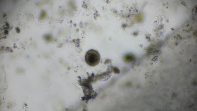 hookworm ovum under light microscopy - micrografia video stock e b–roll