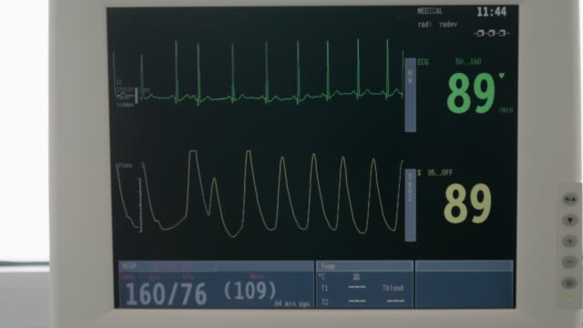 hospitals. cu, esg monitor. display of vital signs monitor show waveform ecg. emergency room. - frequency stock videos & royalty-free footage