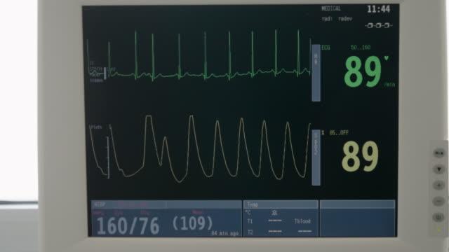 vídeos y material grabado en eventos de stock de hospitales. cu, monitor esg. la visualización del monitor de signos vitales muestra el ecg de forma de onda. sala de emergencias. - frecuencia