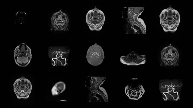 stockvideo's en b-roll-footage met menselijk brein mri-scan - science and technology