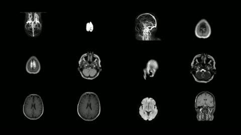human brain mri scan - x ray image stock videos & royalty-free footage