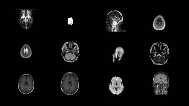 human brain mri scan - human bone stock videos & royalty-free footage