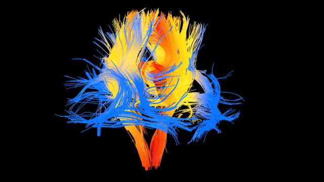 human brain pathways - anatomie stock-videos und b-roll-filmmaterial