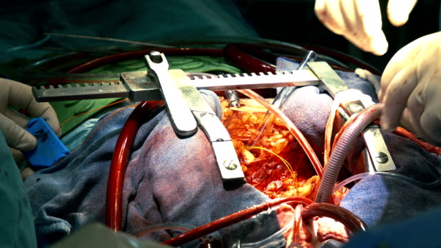 human chest pulled apart. surgery process - chest torso stock videos & royalty-free footage