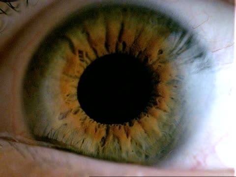 Human eye - CU brown eye, dilated pupil contracts, eyelid closes