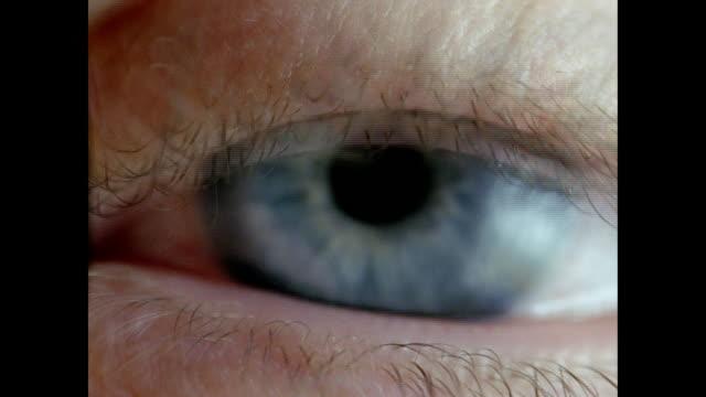Human Eye - Eyelids and eyelashes protecting out of focus eye