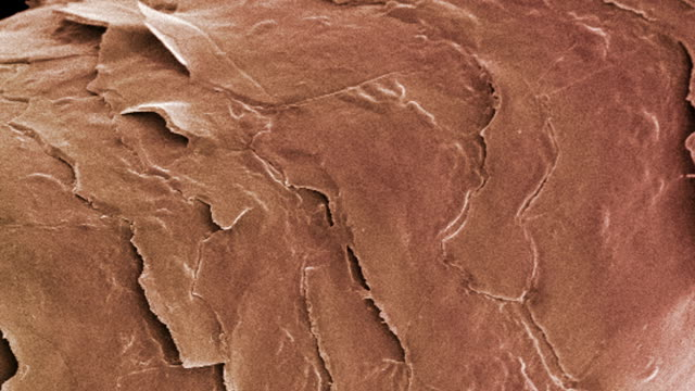 """human hair, sem"" - micrografia video stock e b–roll"