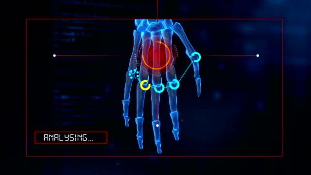 4k menschliche hand analyse - anatomie stock-videos und b-roll-filmmaterial