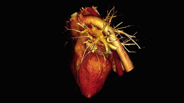 human heart - aorta stock-videos und b-roll-filmmaterial