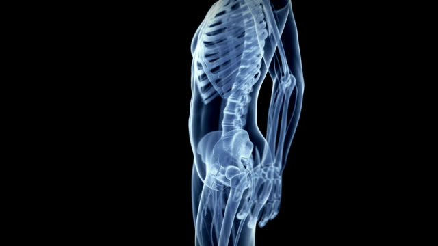 human hip pain - human joint stock videos & royalty-free footage