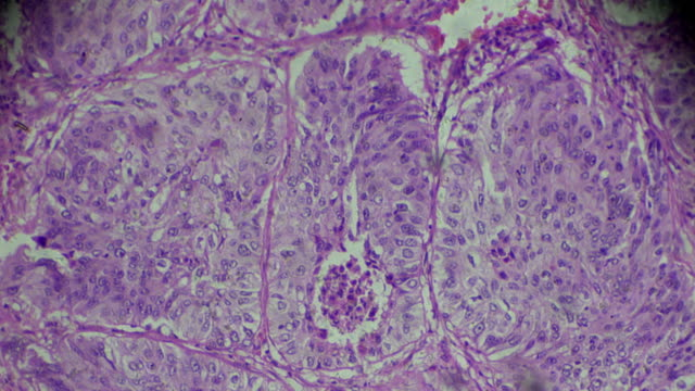 human lung cancer biopsy under light microscopy - micrografia video stock e b–roll