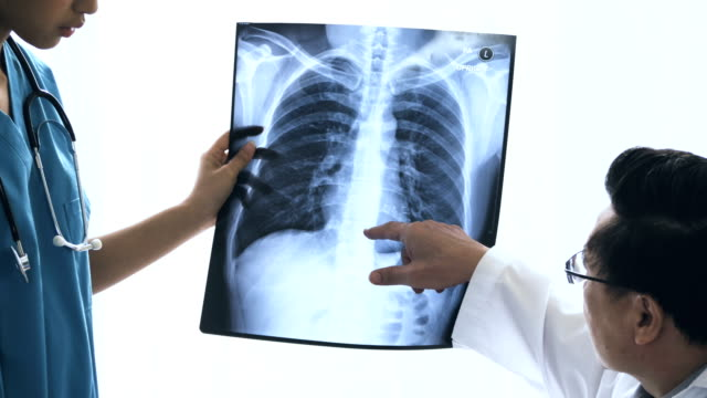 human lungs : breathing system - radiografia video stock e b–roll