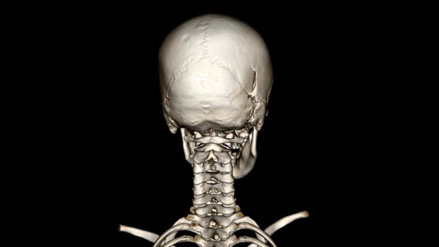 human neck and skull - human neck stock videos & royalty-free footage