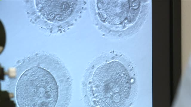 human oocyte cryopreservation on september 17, 2014 in new york city. - piastra petri video stock e b–roll