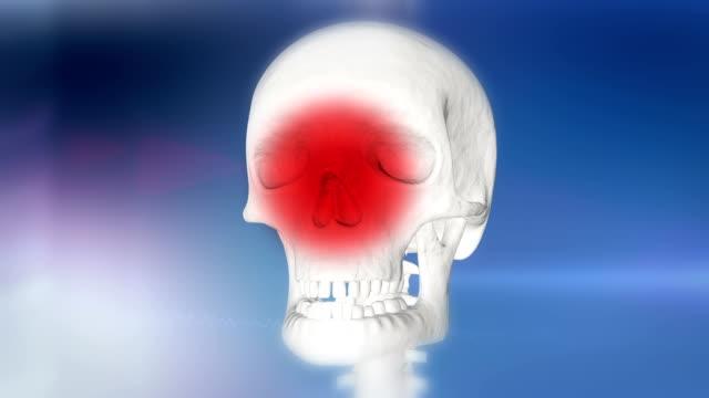 hd: human skull indicating rhinitis - inflammation stock videos & royalty-free footage