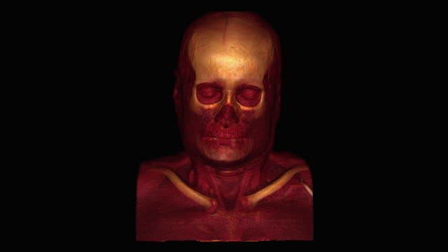 human skull - biomedical illustration video stock e b–roll