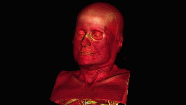 vidéos et rushes de human skull - illustration biomédicale