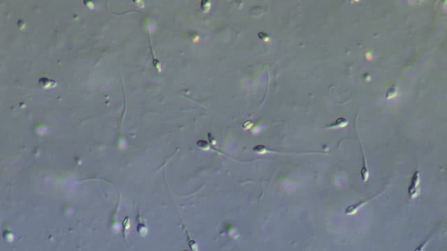 human sperm, medium close up lots sperm swimming around, includes deformed - deformed stock videos & royalty-free footage