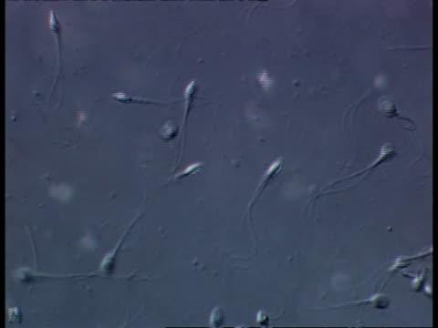 human sperm, movement, tails, grey background, cu - sperm stock videos & royalty-free footage