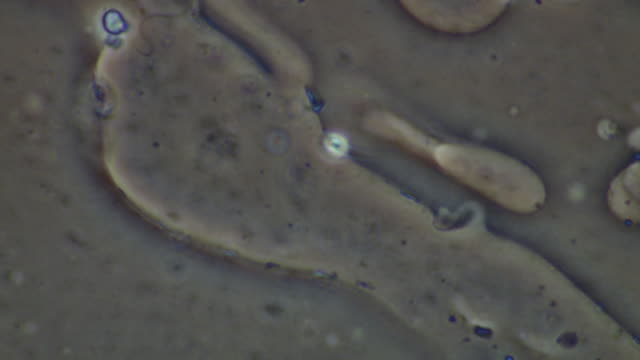 human sperm, single sperm swimming, a few others around - flagello video stock e b–roll