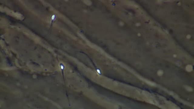 vidéos et rushes de human sperm, single sperm swimming but not getting very far - flagelle
