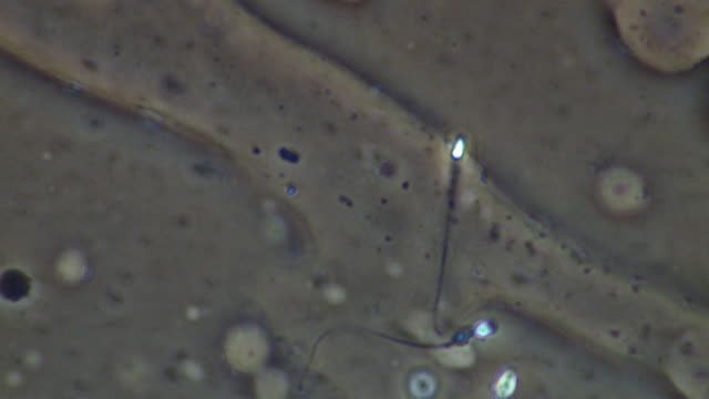 vidéos et rushes de human sperm, single sperm swimming, few others around - flagelle