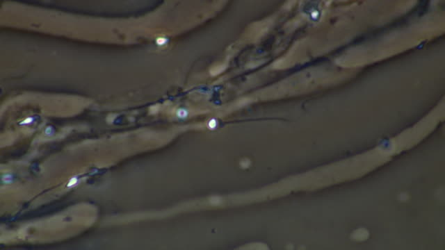 human sperm, single sperm swimming, head looks deformed - flagello video stock e b–roll