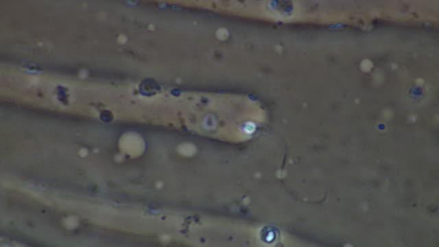 vidéos et rushes de human sperm, single sperm swimming, makes good progress - flagelle