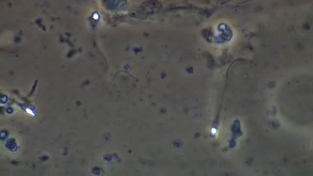 vidéos et rushes de human sperm, single sperm swimming - flagelle