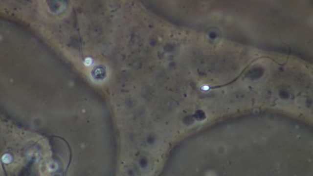 human sperm swimming, close up, phase contrast - flagello video stock e b–roll