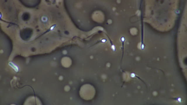 human sperm swimming, close up, phase contrast - medium group of objects stock videos & royalty-free footage