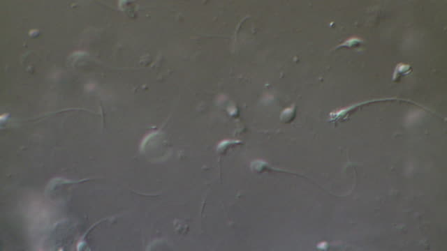 human sperm swimming, masses, interference contrast - flagello video stock e b–roll