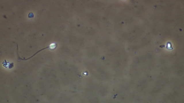 human sperm swimming, phase contrast - flagello video stock e b–roll