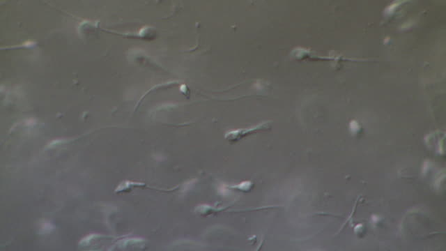 Human sperm swimming with track, includes two tailed Human sperm, Interference contrast