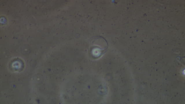 human sperm, two sperm swimming rather ineffectually - flagello video stock e b–roll